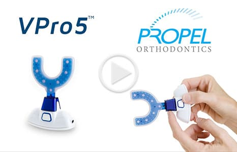 Propel Video Cover Smile Concepts Orthodontics in Apopka, FL